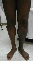 Deep vein thrombosis (DVT) image
